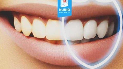 Rahasia Gigi Tetap Putih Bersinar
