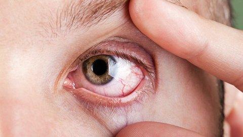 Mata Kering Diabaikan Berakibat Fatal, Kenali Penyebab dan Gejalanya!
