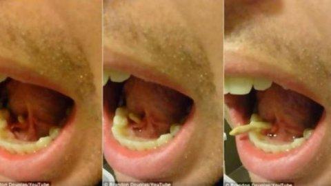 Ajaib, Batu Tumbuh di dalam Mulut Pria Malang Ini