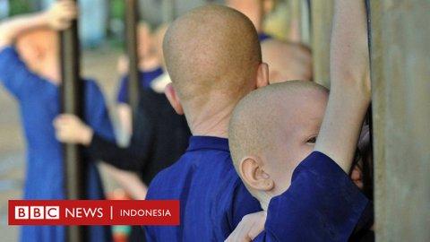 Seorang anak albino berusia tujuh tahun dipotong tangannya saat tidur
